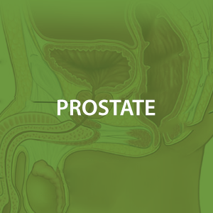 mwz-prostate.png